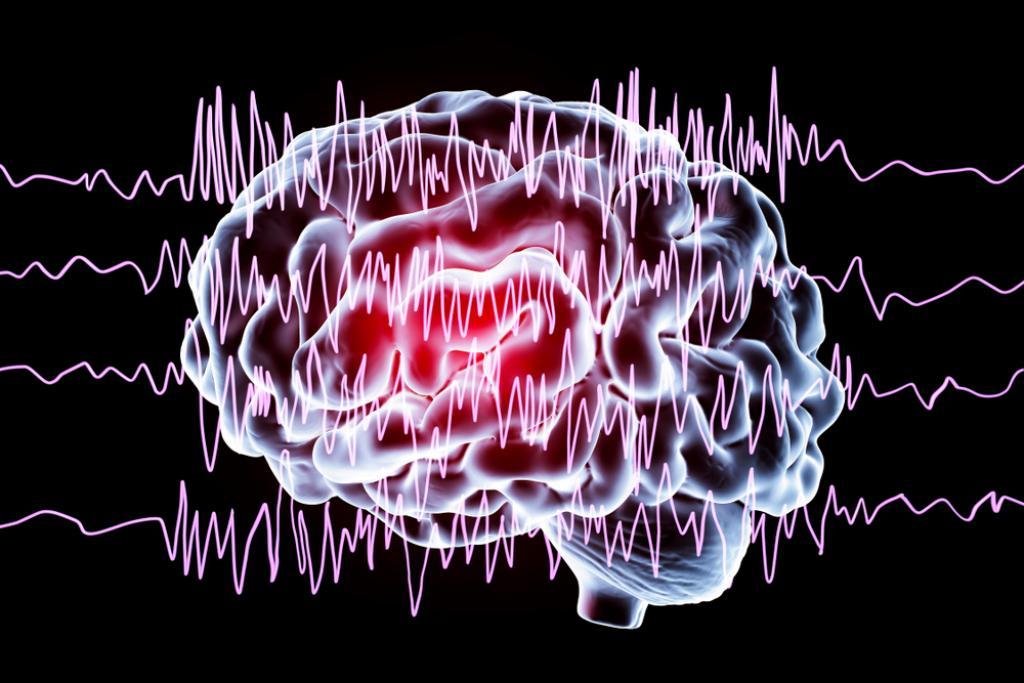 EEG epilepsja